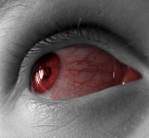 Красные глаза картинки - 256b